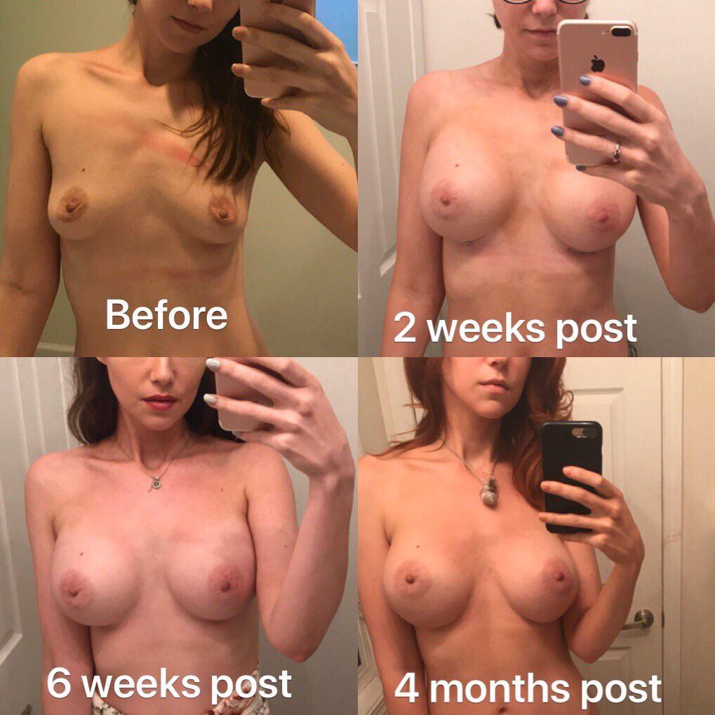 Here's Kat's boob evolution.